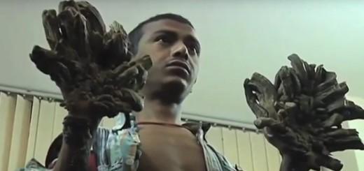 """VIDEO: """"ČOVJEK DRVO"""" IZ BANGLADEŠA - Nema lijeka za strašnu bolest koja ljude pretvara u drvo 1"""