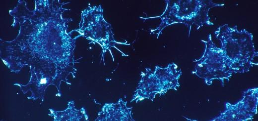 ZVONO ZA UZBUNU: Zašto ljudi ignoriraju mnoge simptome koji mirišu na tumore?