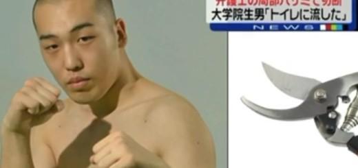 STRAŠNA OSVETA: Bivši boksač odrezao penis ljubavniku svoje žene vrtnim škarama