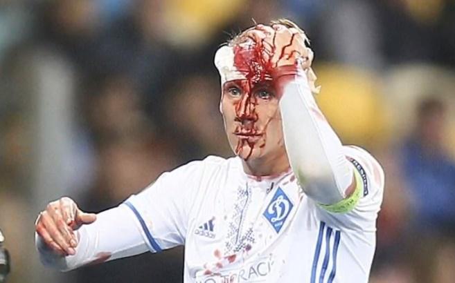 Domagoj Vida,krv