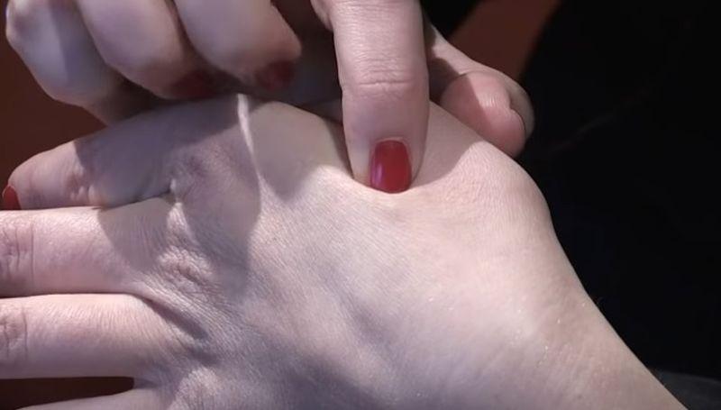 Šveđani imaju zakon o čipiranju, a oni koji su pristali imaju mikročip veličibe riže između palca i kažiprsta